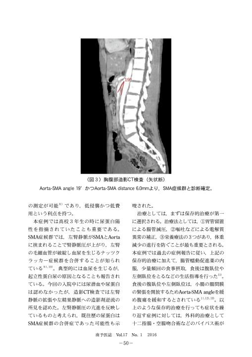 上 腸 間 膜 動脈 症候群 と は
